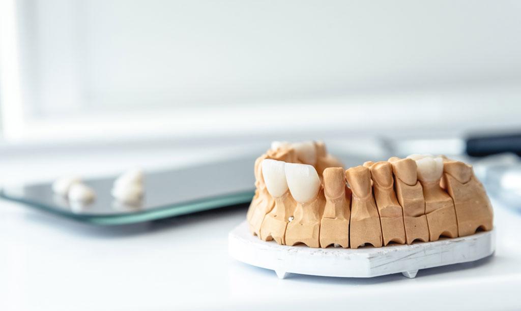 Dentures, veneers, crowns, implants are made in a dental laboratory